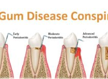 The Gum Disease Conspiracy