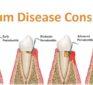 The Gum Disease Conspiracy