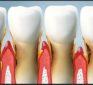 Coenzyme Q10 is an effective weapon against gum disease