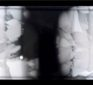 "Must See:  The Evolution of Resistant Bacteria on an Antibiotic ""Mega-Plate"" Petri Dish – Harvard Medical"